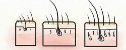 Reverse hair follicle miniaturization