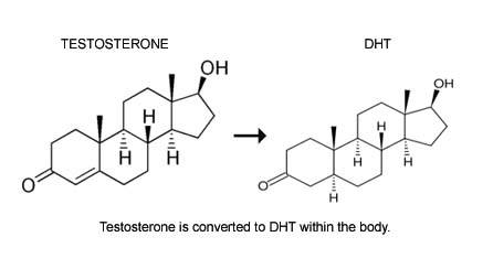 Testosterone is converted to DHT which is the main hormone responsible for hair loss.