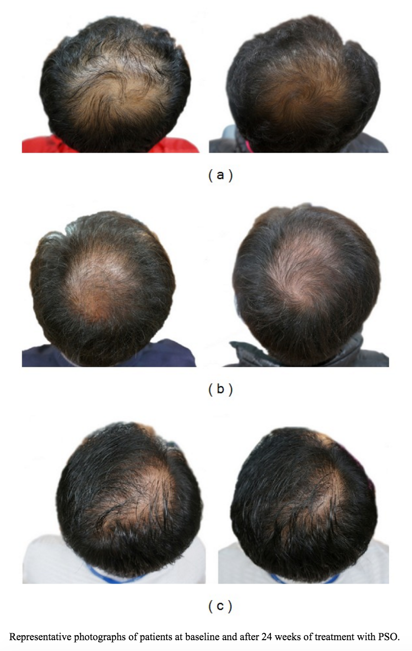Before and after results of using pumpkin seed oil on hair after 24 weeks