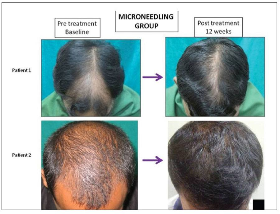 Before and after photos of minoxidil group + dermaroller