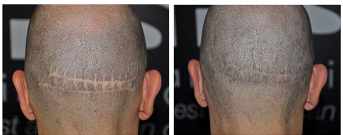 Neograft helps to minimise any hair transplant scars
