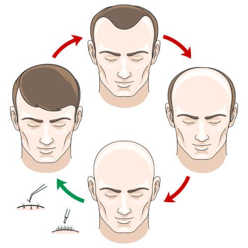 The process of hair loss and hair regrowth via transplant