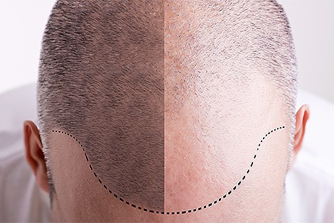 Follicular Hair Extraction Six Days After Transplant
