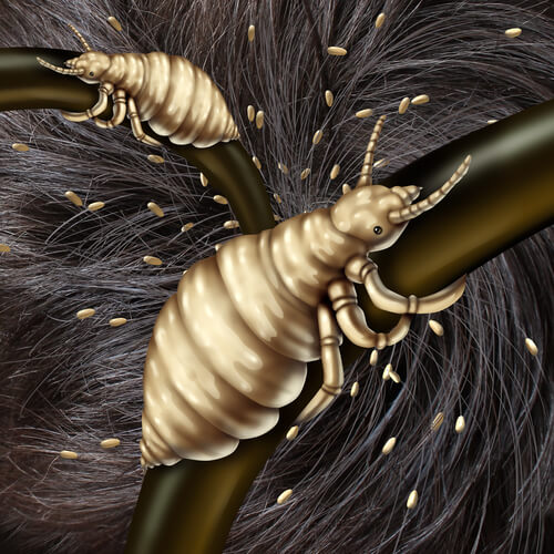 The Truth About Your Itchy Scalp And Hair Loss | 5 Big Causes