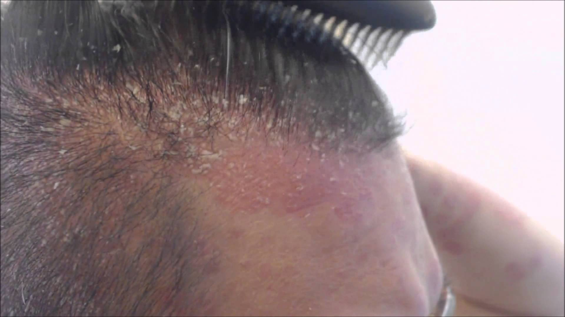 A man with scalp psoriasis