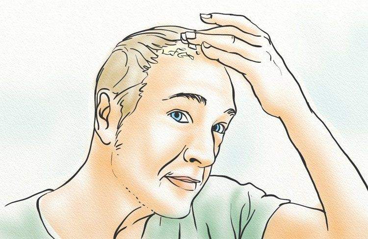 A man with a fungal infection on his scalp