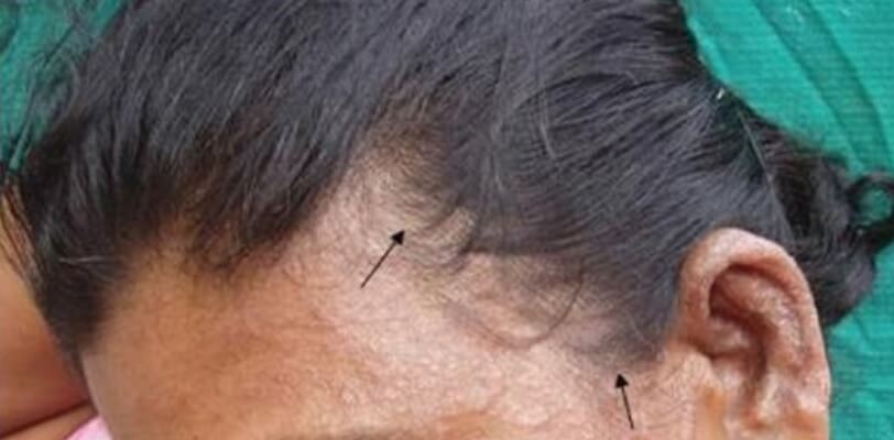 3 Fungal Infections cause Hair Loss | How To Stop Them - Hairguard