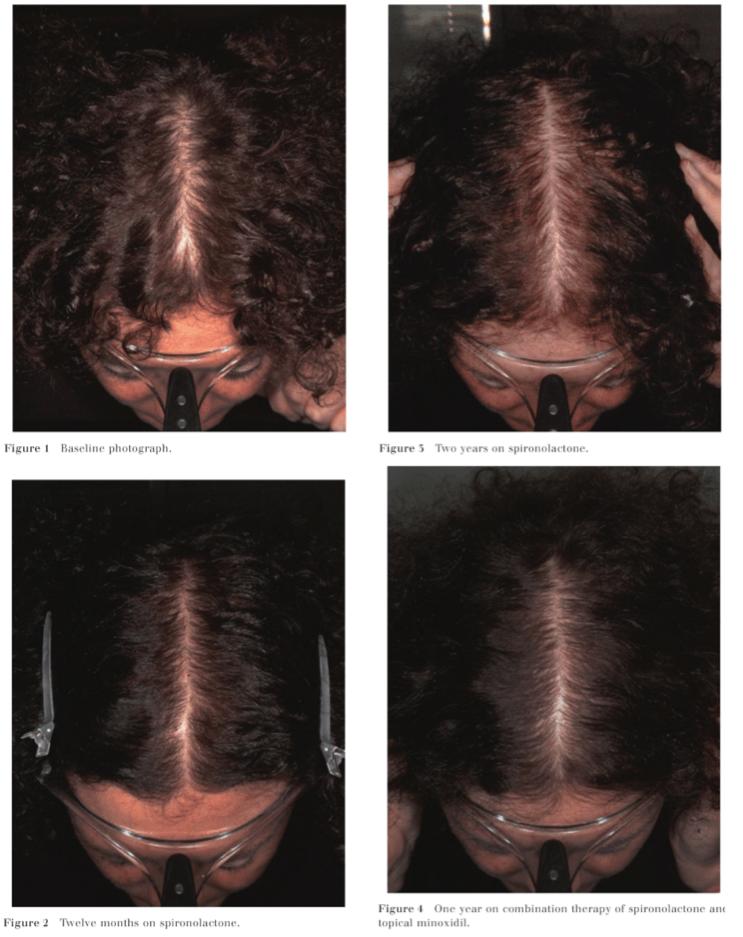 spironolactone-female-hair-loss