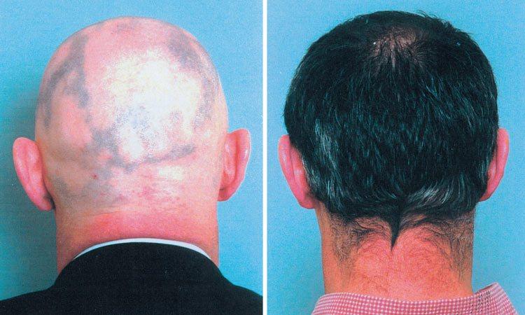 Before vs after jojoba oil