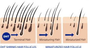 hair follicle miniaturization caused by DHT