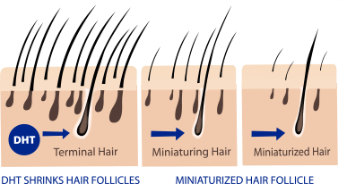 3 Ways To Use Almond Oil For Hair Loss 32 Increase In
