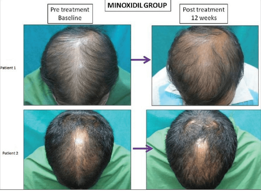 The results of Minoxidil application on hair growth.
