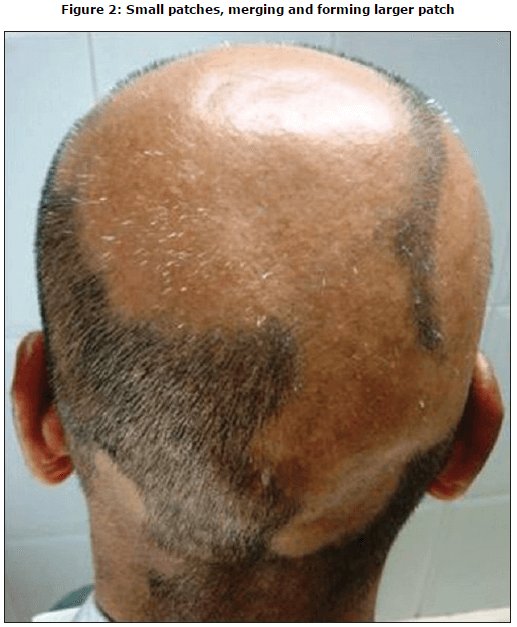 thesis on alopecia Free college essay alopecia alopecia: alopecia areata is the abnormality of the skin that i chose to do my reacearch paper on alopecia is.