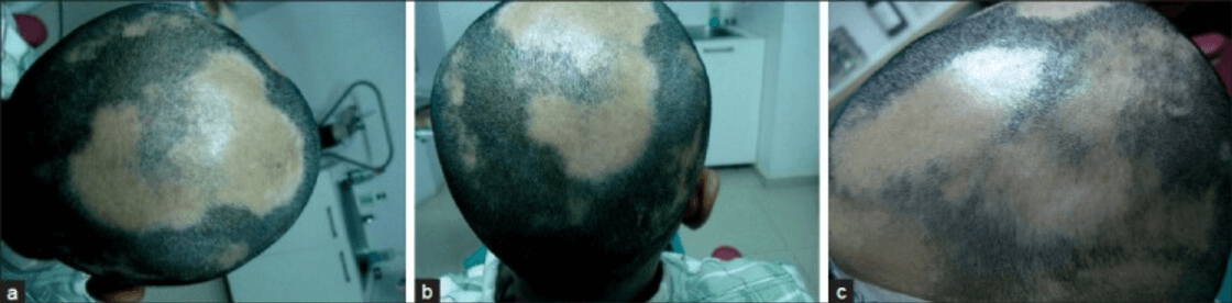 The presentation of alopecia areata in male patient.