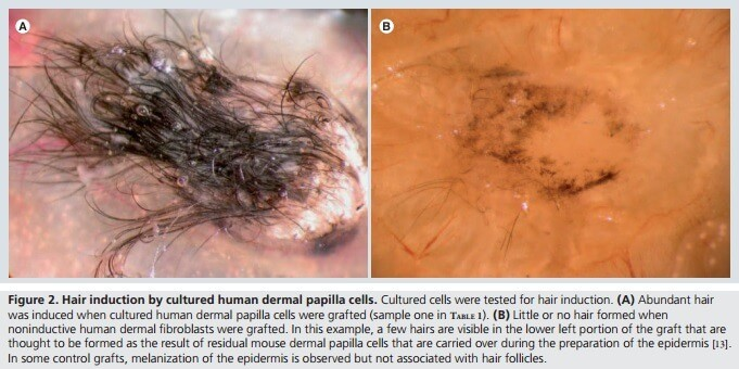 Grafted hair results