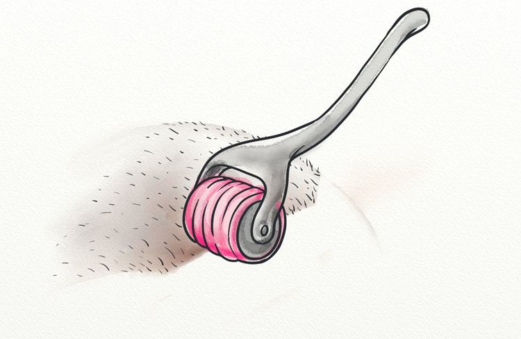 Microneedling For Hair Growth - Proven 5X More Effective