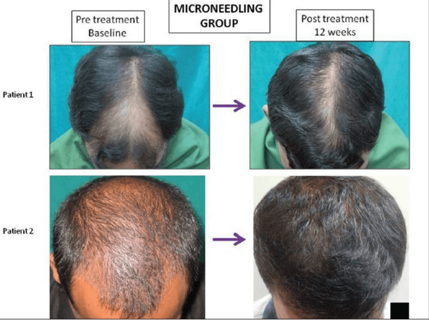 The results of Microneedling therapy on hair growth.