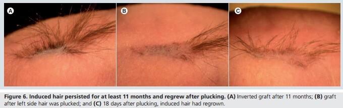 Plucked hair growth