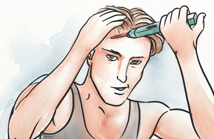Man with pipette applying liquid to scalp