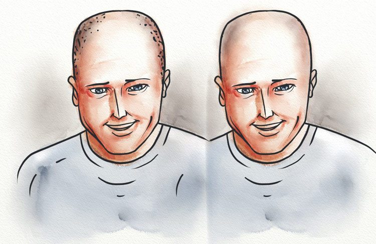 A man with and without scalp micropigmentation