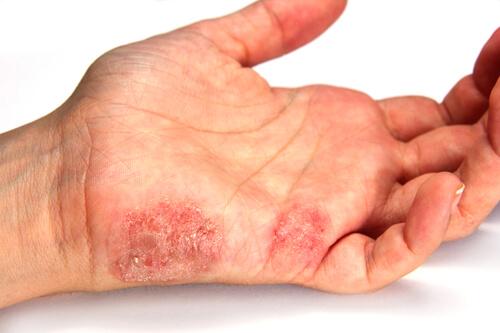 An area of eczema on the hand