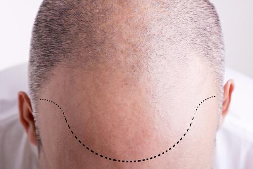 A hair transplant patient