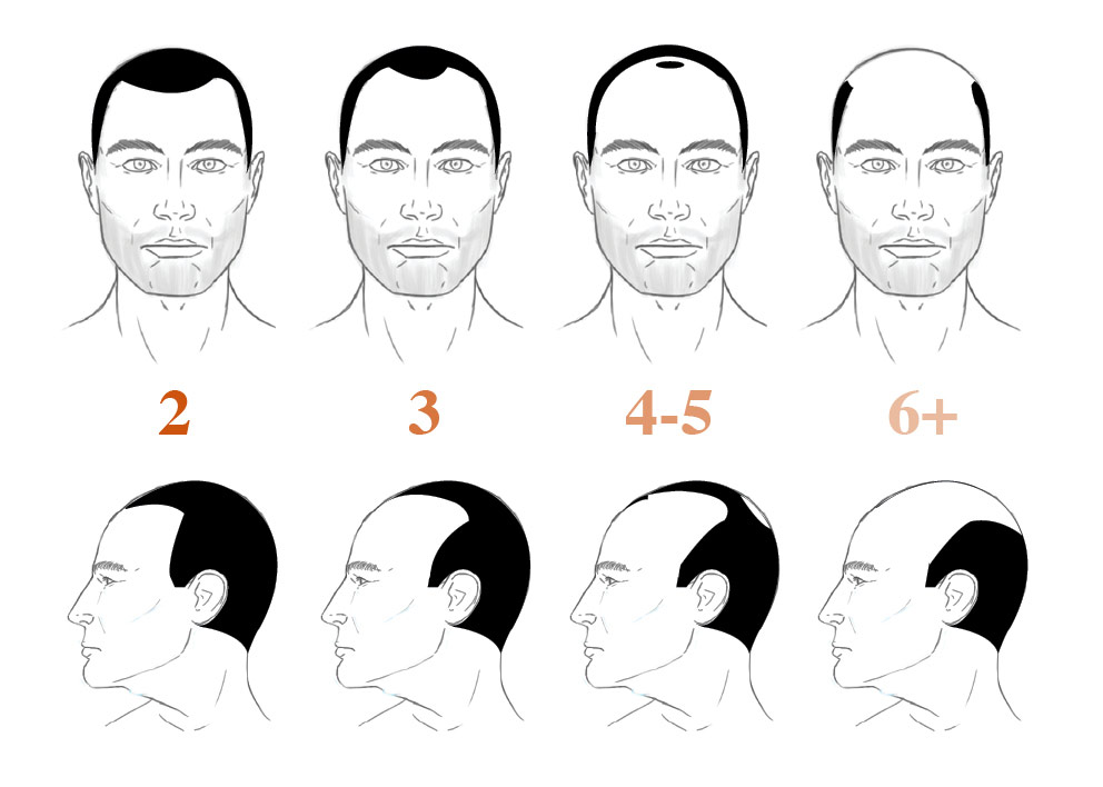 Developed In The 1950s And Later Revised In The 1970s, The Norwood Hair  Loss Scale Is A Classification Method Which Determines Patterns Of Hair  Loss.