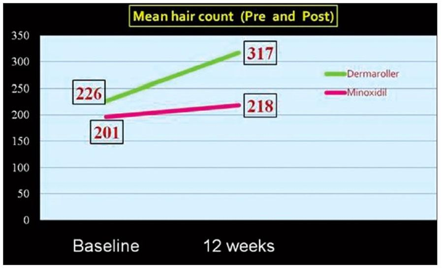 Hair count increases dramatically by using a dermaroller.