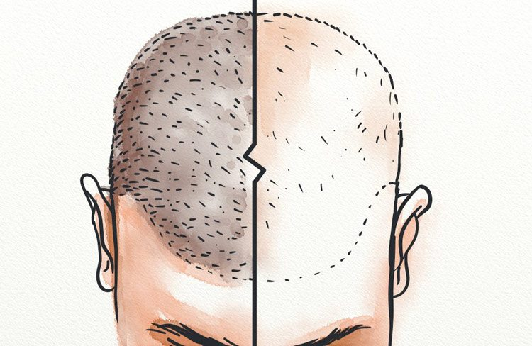 Makeup solutions to cover bald spots