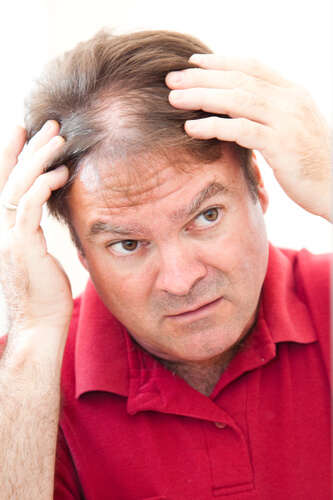 A man with diffuse hair thinning