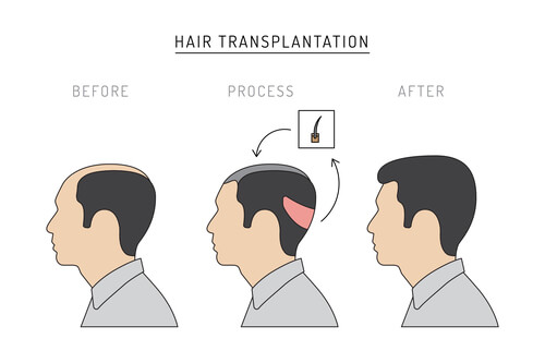 An example of FUT hair transplant