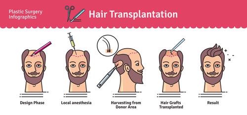 Modern hair transplant method