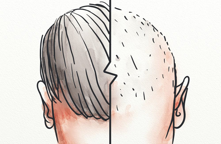 A man with one-sided hair loss