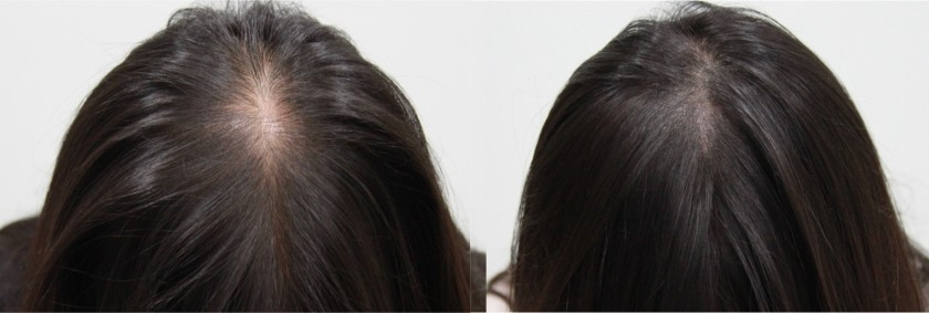 Semi permanent scalp micropigmentation helps to cover bald spots from diffuse hair loss