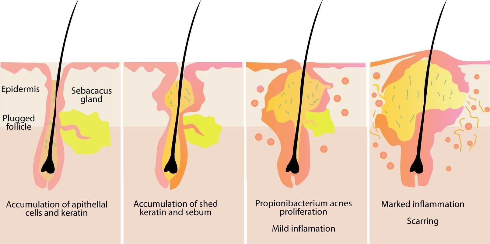 A diagram showing sebum buildup and blockage