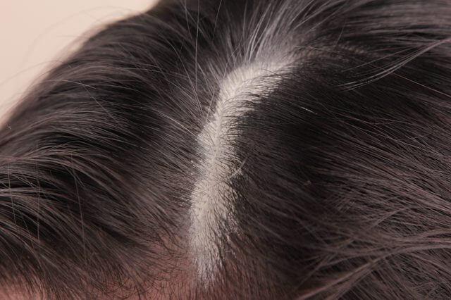 Sebum buildup on the scalp