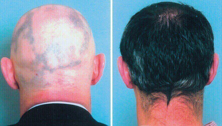 A male showing hair growth after rosemary oil supplementation