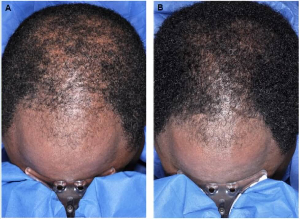 The results of minoxidil on hairline