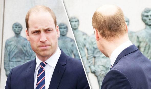 prince william bald зурган илэрцүүд