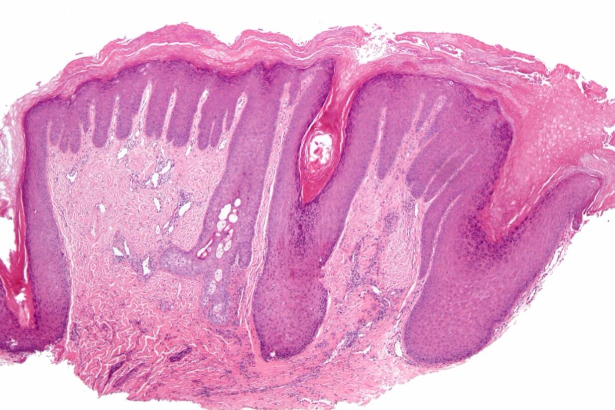 A magnified skin biopsy specimen