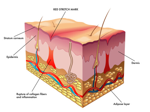 Collagen in scarring and stretch marks