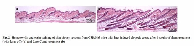 A skin biopsy of Alopecia Areata mice