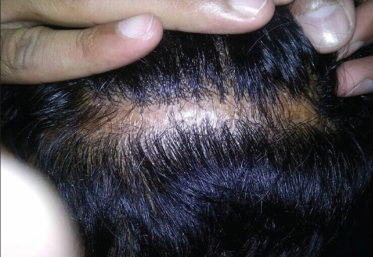 A donor scar as a result of hair transplant