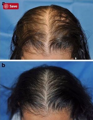 Before and after image of female treated with lasercomb