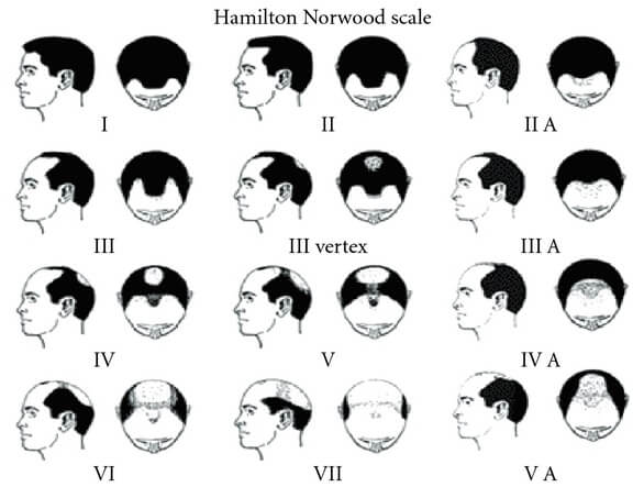 The Hamilton Norwood scale for hair loss