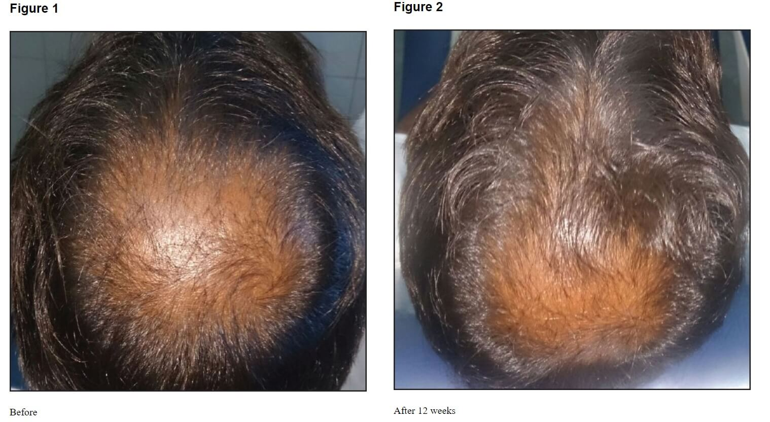 Platelet-rich plasma before and after