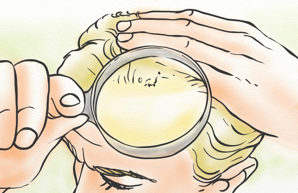 Inspecting the scalp for signs of dermatitis