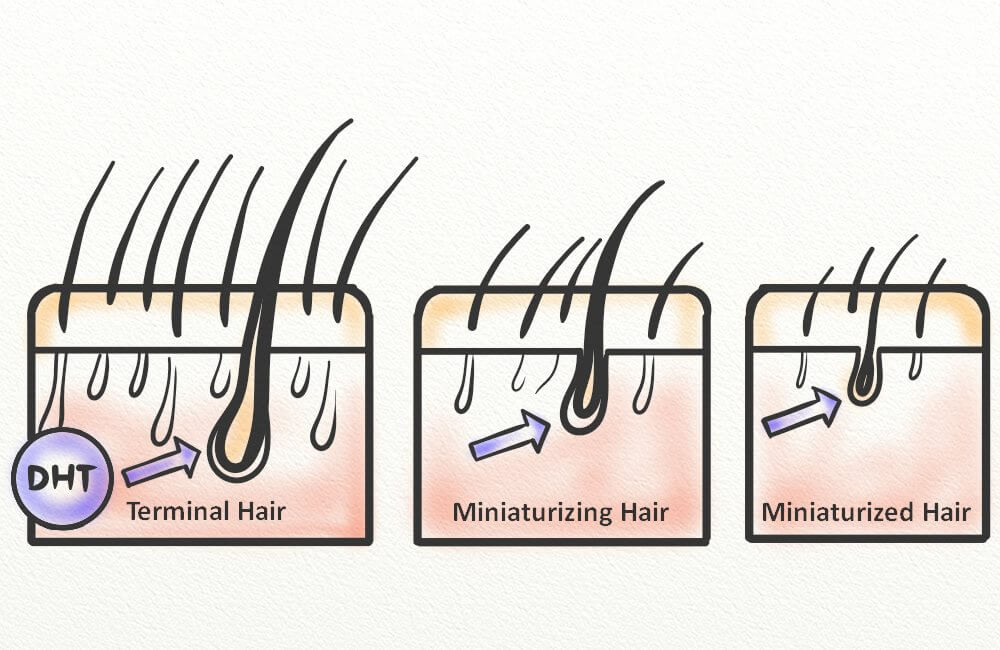 A diagram of hair follicle miniaturization