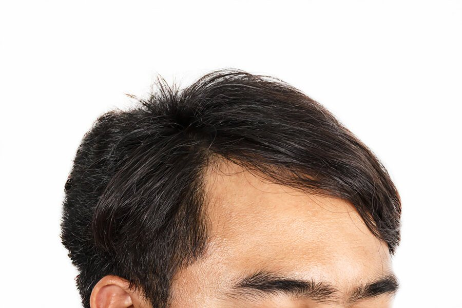 3 Ways to Tell if You Have a Receding Hairline - Hairguard