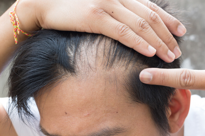 Hair Loss In Teens: Causes, Signs, and How to Treat It